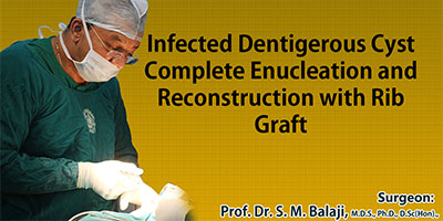Infected Dentigerous Cyst, Complete Enucleation and Reconstruction with Rib Graft