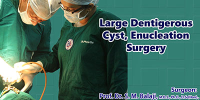 Large Dentigerous Cyst Enucleation Surgery