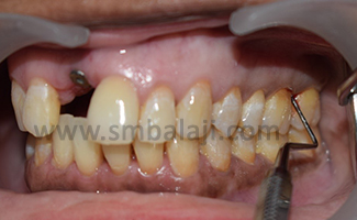 After oral prophylaxis and sub-gingival debridement the surgical procedure was planned