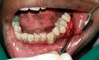 After phase I therapy, full thickness mucoperiosteal flap was elevated till mucogingival junction irt 35 36 37 region under local anesthesia