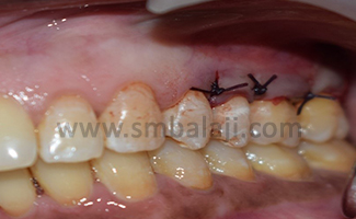 Mucoperiosteal flap approximated to cover the gingival recession. Suturing done using 3.0 vicryl