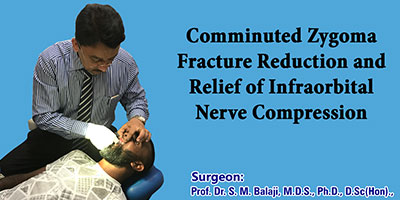 Comminuted zygoma fracture reduction and relief of infraorbital nerve compression