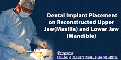 Dental Implant Placement on Reconstructed Upper Jaw(Maxilla) and Lower Jaw (Mandible)