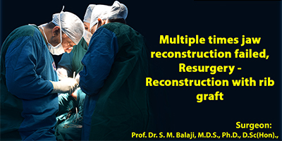 Multiple times jaw reconstruction failed, Resurgery - Reconstruction with rib graft