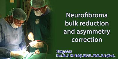 Neurofibroma bulk reduction and asymmetry correction