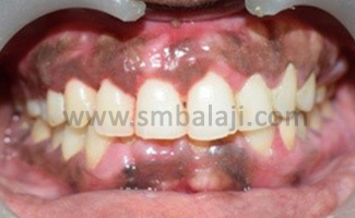 Post-operative view showing esthetically pleasing gingival contour
