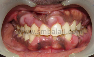 Pre-operative view showing plaque induced gingival enlargement
