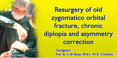 Resurgery of old zygomatico orbital fracture, chronic diplopia and asymmetry correction