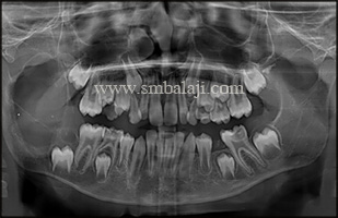 Preoperative digital OPG showing huge expansile osteolyticlesion involving right ramus, angle and body of the mandible