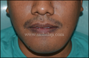 Preoperative facial profile showing huge swelling in the lower half of the face