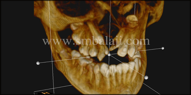 3D Cbct Scan Showing The Wide Unilateral Alveolar Cleft Defect