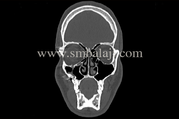 Ct Scan Showing Herniation Of The Right Orbital Contents