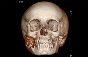 A Buccolingual expansile osteolytic lesion involving right side of the mandible