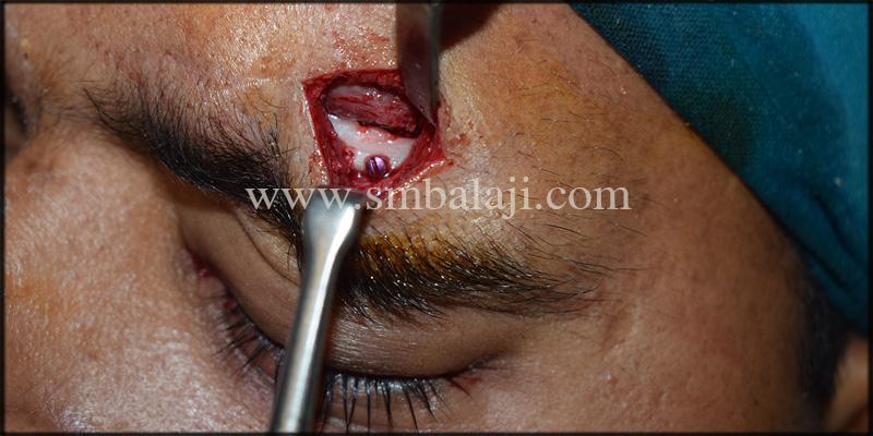 Left eyebrow defect augmentation done with cc bone graft