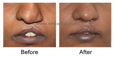 Depressed nose correction by closed rhinoplasty