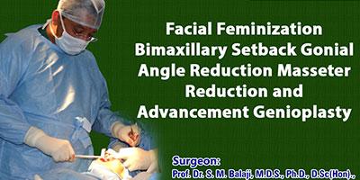 Facial Feminization – Bimaxillary setback, Gonial angle Reduction, Masseter Reduction and Advancement Genioplasty