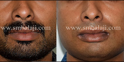 Improving facial profile by Masseter reduction