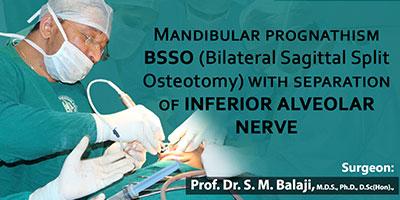 Mandibular Prognathism BSSO (Bilateral Sagittal Split Osteotomy)