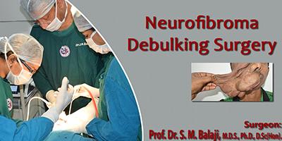 Neurofibroma debulking surgery