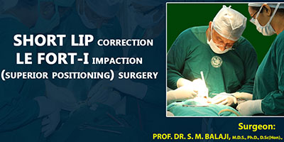 Short lip correction Le Fort I impaction superior positioning surgery