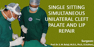 Single sitting simultaneous unilateral cleft palate and lip repair