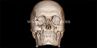 Successful surgical correction of diplopia and depressed zygoma