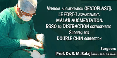 Vertical augmentation genioplasty, Le Fort 1 advancement