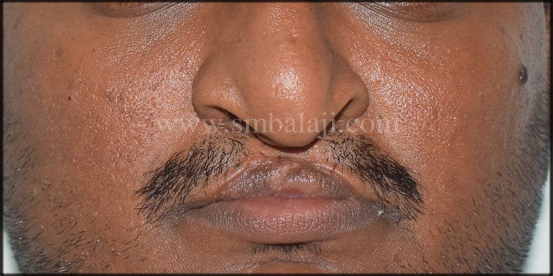 Pre-operative facial view showing defective lip and nose due to bilateral cleft lip and palate