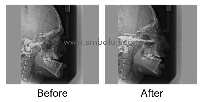 Pre and postoperative lateral cephalograms