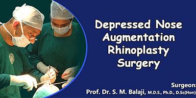Depressed Nose Augmentation Rhinoplasty Surgery
