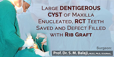 Large dentigerous cyst of maxilla enucleated. Root canal treated teeth saved