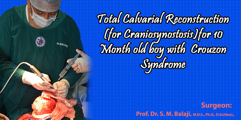 Total Calvarial Reconstruction (for Craniosynostosis)for 10 Month old baby with Crouzon Syndrome