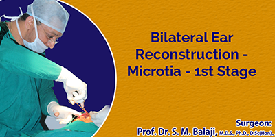Bilateral Ear Reconstruction – Microtia – 1st Stage