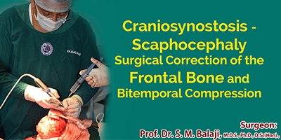 Craniosynostosis - Scaphocephaly Surgical Correction of the Frontal Bone and Bitemporal Compression