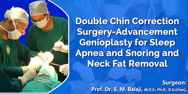 Double Chin Correction Surgery-Advancement Genioplasty for snoring and sleep apnea and Neck fat Removal
