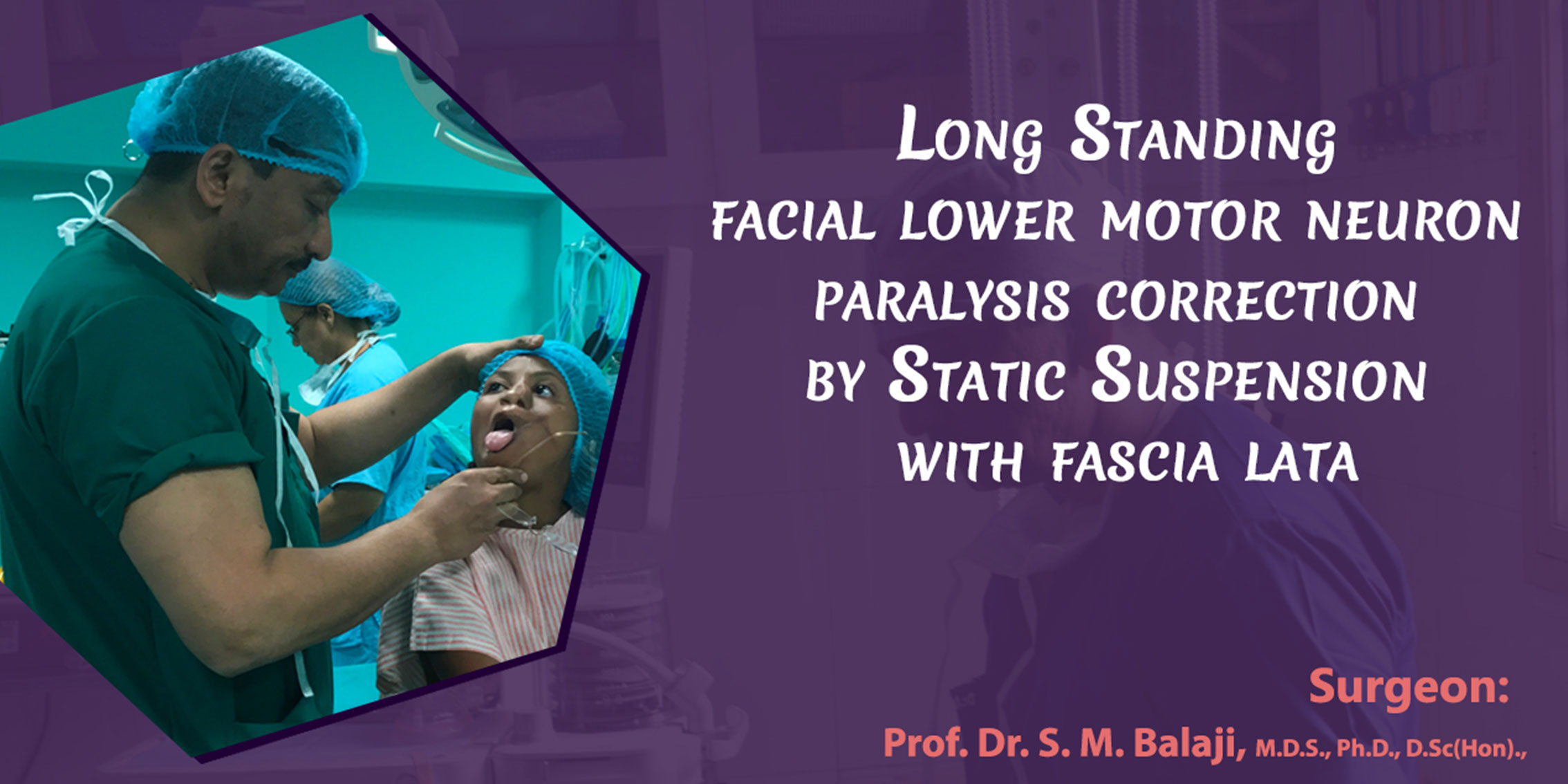Long standing lower motor neuron facial paralysis correction by static suspension with fascia lata
