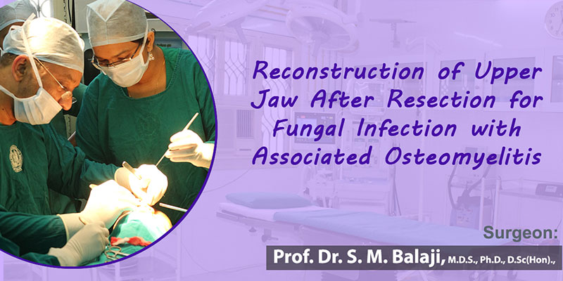 Reconstruction of Upper Jaw After Resection for Fungal Infection with Associated Osteomyelitis