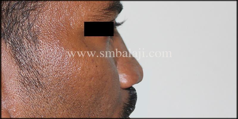 best rhinoplasty surgery in india