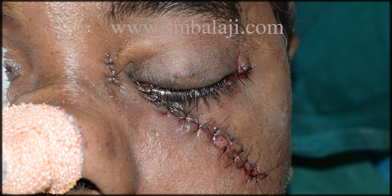 Maxillofacial Surgery In India