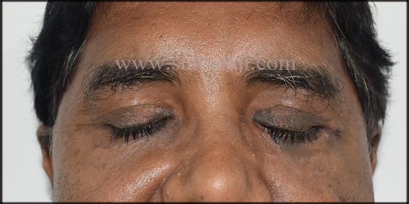 Facial Bone Fracture Surgery