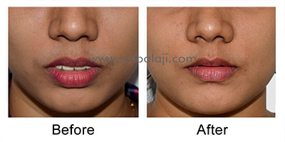 Dr. SM Balaji is the best jaw surgeon in India