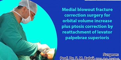 Medial blowout fracture correction surgery for orbital in India