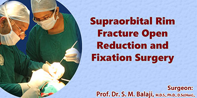 Open Reduction Internal Fixation Surgery in India