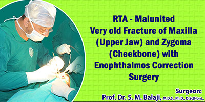 RTA - Malunited Very old Fracture of Maxilla (Upper Jaw) and Zygoma (Cheekbone) with Enophthalmos Correction Surgery