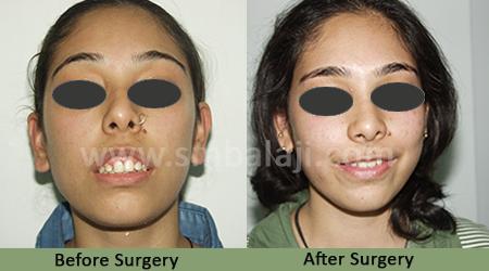best maxillofacial surgeon in india