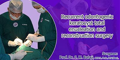 mandibular reconstruction surgery in india
