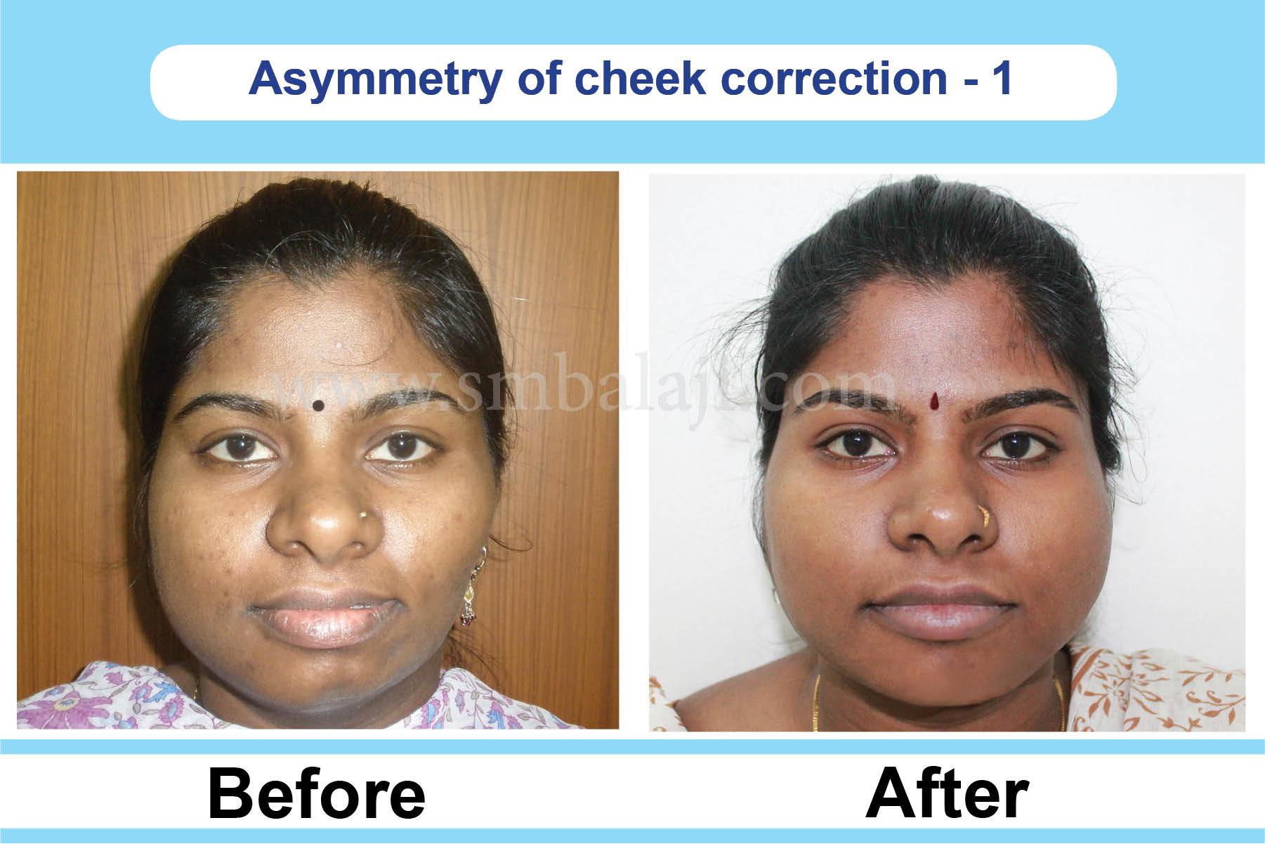 Cheekbone reduction surgery india