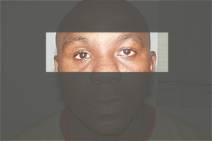 Facial Trauma emergency surgery chennai