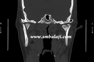 CT showing condylar neck fracture on both sides and displaced inwards