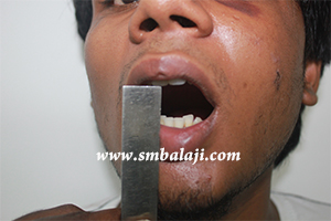 Jaw fracture surgery india